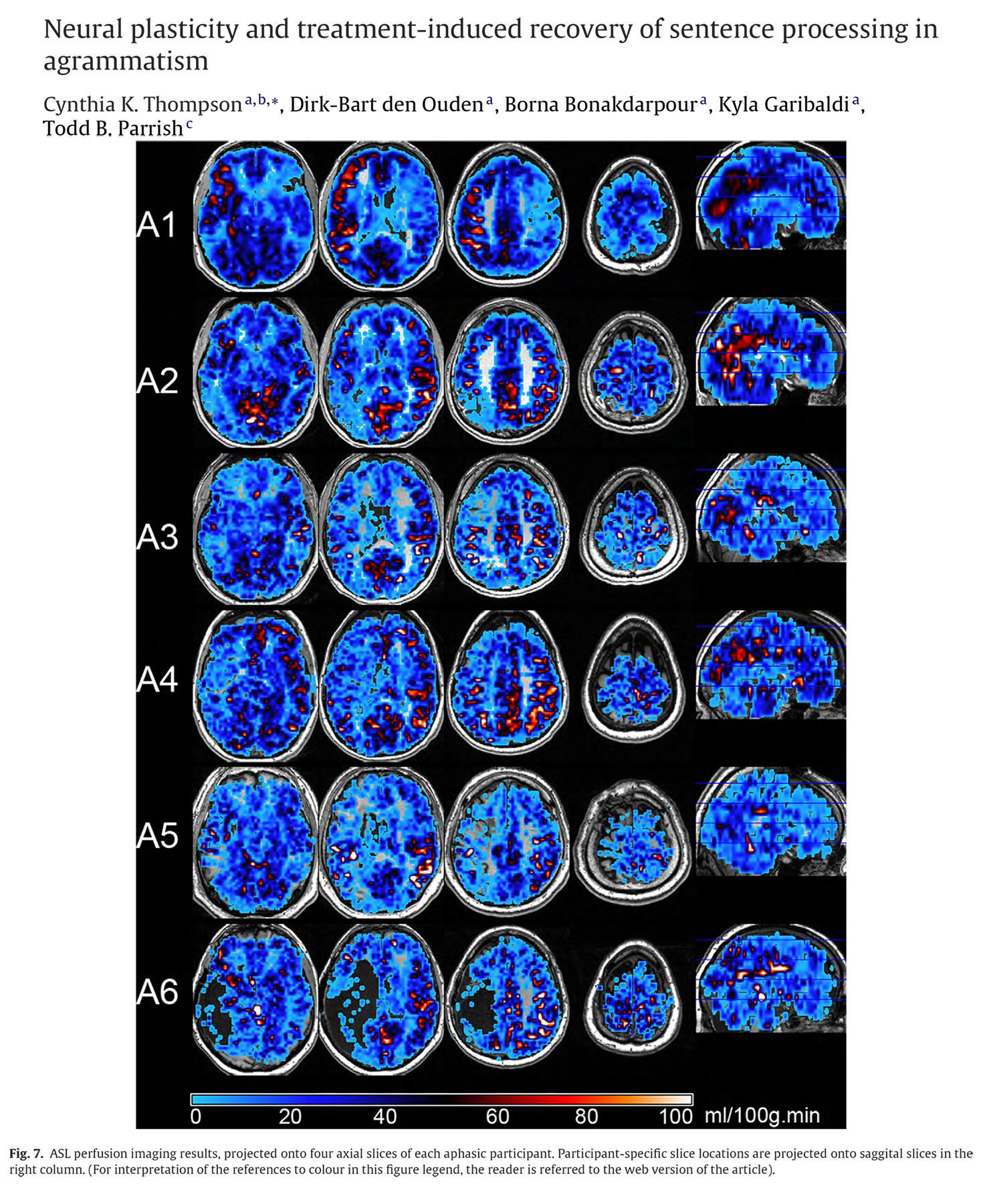Neuropsychologia, 48 (2010) 3211-3227. 10.1016/j.neuropsychologia.2010.06.036