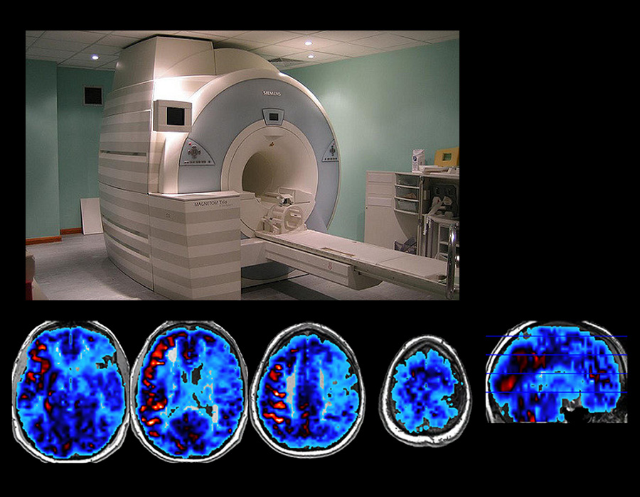 Language processing and recovery are studied using functional magnetic resonance imaging (fMRI).