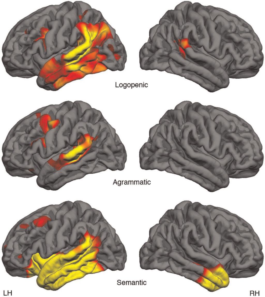 ppa-brains